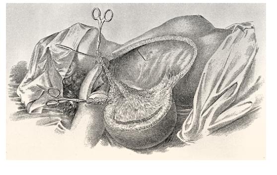 Radikální mastektomie dle Halsteda. Zdroj: Wikimedia Commons (CC BY 4.0)