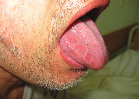 Infitrace jazyka při AL amyloidóze s imprinty zubů.<br>