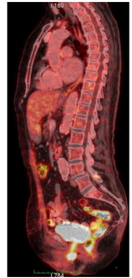 Obr. 2 c. Předoperační PET-CT, sagitální sken<br> Fig. 2 c. Preoperative PET-CT, sagittal scan