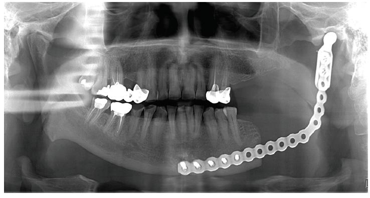Obr. 1B Stav po resekci čelisti snáhradou pomocí rekonstrukční titanové dlahy <br> Fig. 1B Result after resection of the jaw with reconstruction with titan splint