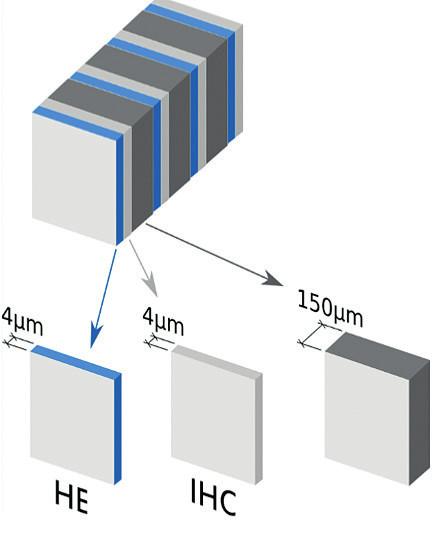 Protokol pro ultrastaging při vyšetření sentinelových uzlin
