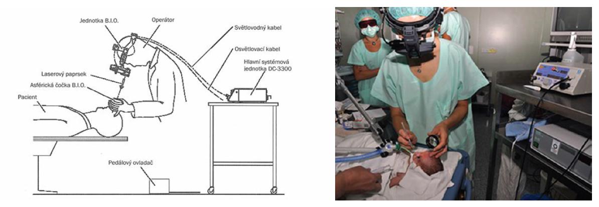 Transpupilární operace sítnice diodovým laserem s nepřímou oftalmoskopií
