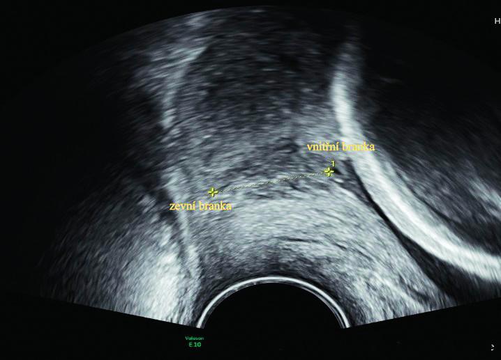 Transvaginální ultrazvuk děložního hrdla