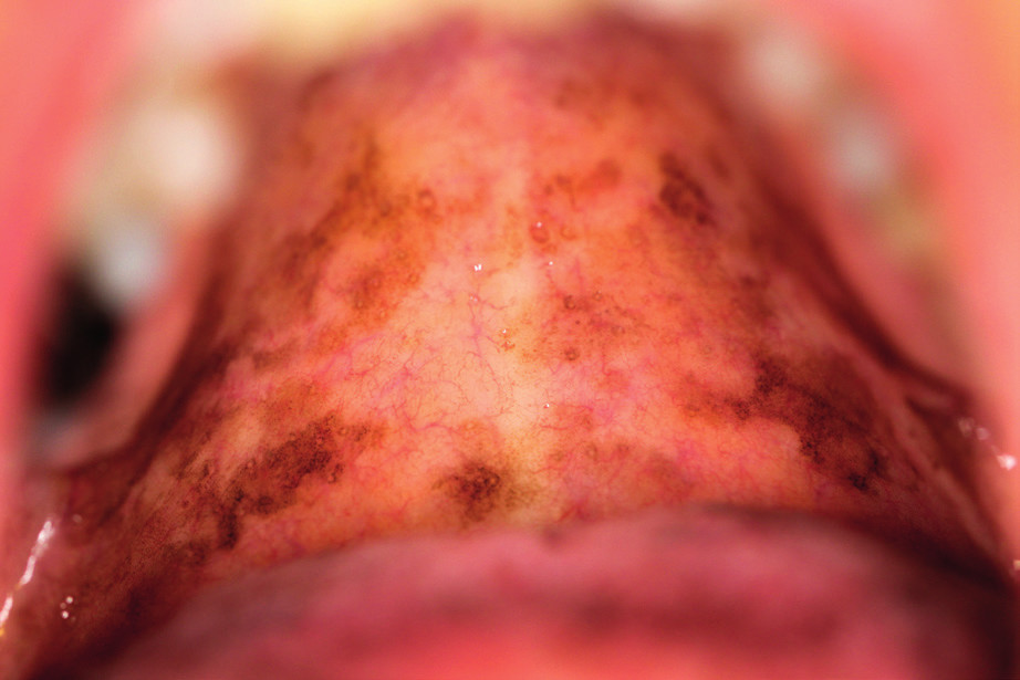 Laugierův-Hunzinkerův syndrom