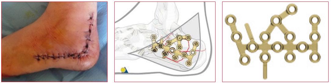 Rozšířený laterální přístup používaný k aplikaci dlahy a titanová LCP dlaha