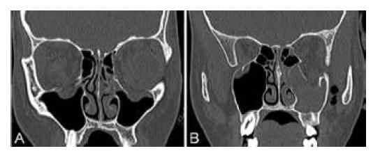 CT vyšetření v den úrazu (A) Oboustranná zlomenina spodiny očnice, (B) Přítomnost vzduchu v levostranné fossa pterygopalatina (napravo)