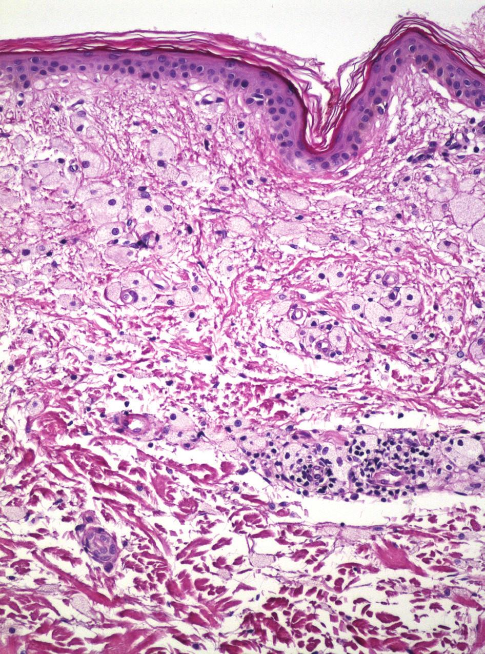 Obr. 3a. Atrofická epidermis, pěnité buňky v dermis (Hematoxylin eosin, 20x)