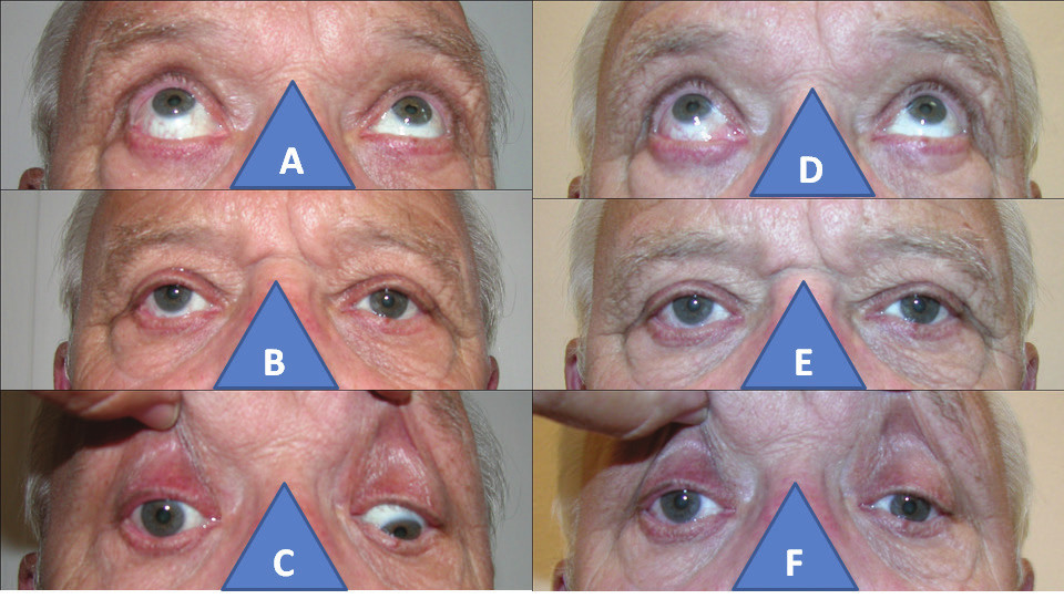 67-year-old man with post-traumatic palsy of inferior rectus muscle in right eye: increased elevation in right eye (A), hypetropia in right eye (B), zero depression in right eye (C), normalisation of elevation after surgery (D), parallel position of eyes after surgery (E), only indication of depression after surgery in right eye (F)