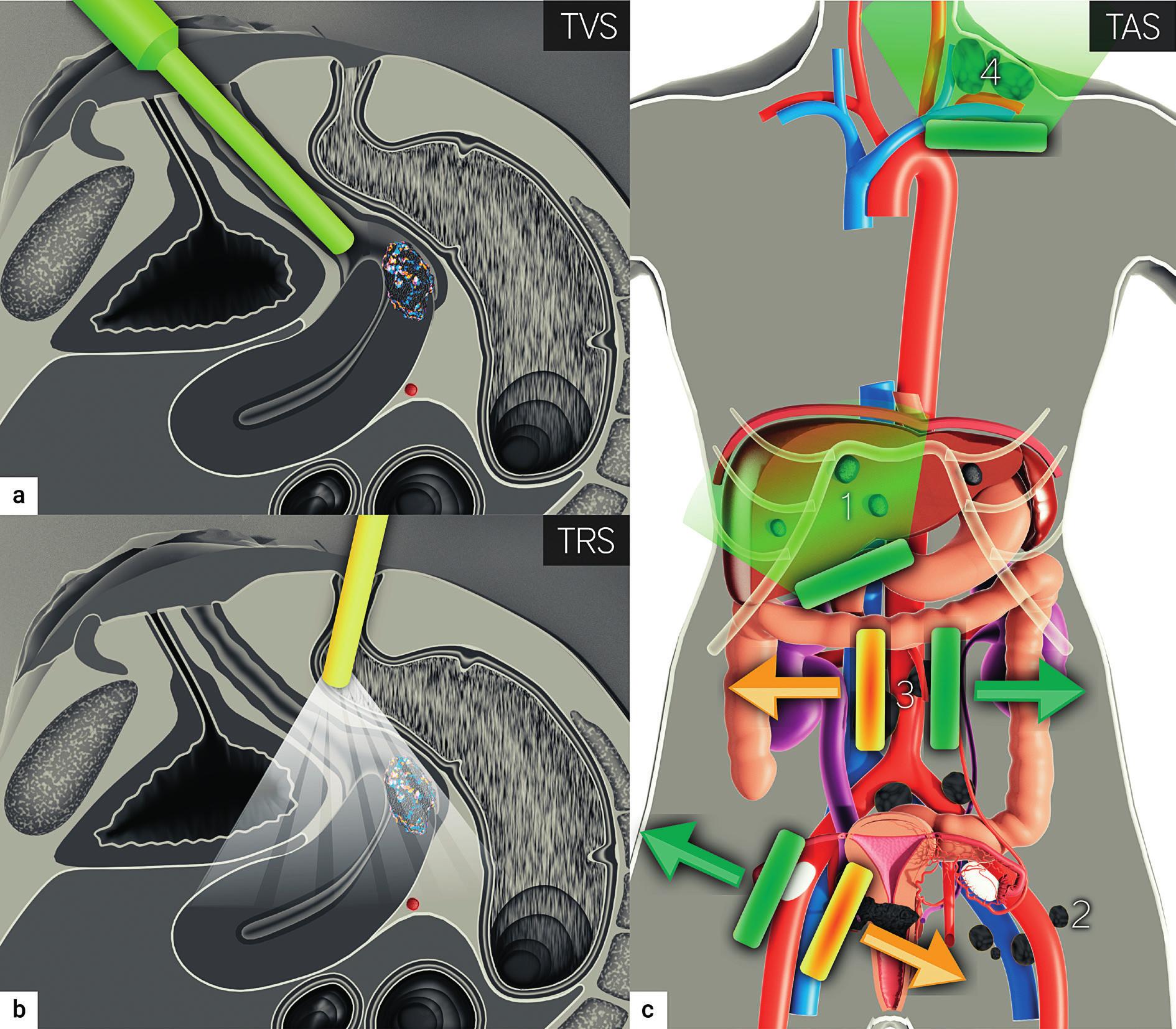 Ultrazvukové zobrazení zhoubného nádoru děložního hrdla<br> Transvaginální (a), transrektální (b) zavedení endovaginální sondy. Transabdominální konvexní sonda zobrazující jaterní metastázy (1), retroperitoneální lymfatické uzliny ilické (2) a paraortální (3). Lineární sonda zobrazující skalenové uzliny vlevo (4). TVS – transvaginální sonografie; TRS – transrektální sonografie; TAS – transabdominální sonografie