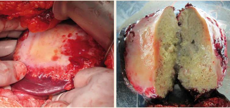 Parazitární cysta v levém laloku jater; peroperační nález a resekovaná cysta.<br> Fig. 3. Parasitic cyst of the left liver lobe; intraoperative finding and resected cyst