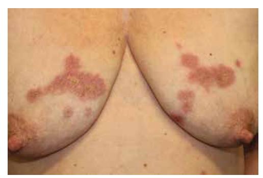 Necrobiosis lipoidica na trupu