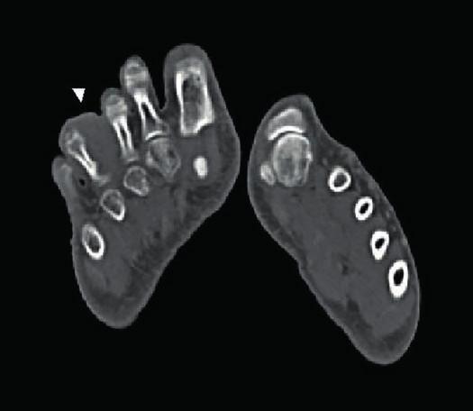 V měkkých tkáních pravé nohy dorsálně mezi III. a IV. prstem je přítomen útvar o vel. 37 x 35 x 32 mm nasedajíci na bazi základního článku IV. prstu, který má nativně denzitu 70 HU a sytí se jen velmi málo kontrastní látkou (prof. Ferda, Klinika zobrazovacích metod, FN Plzeň).