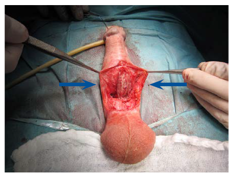 Fixace bukálního štěpu dle Asopy dorzálně, okraje uretry před suturou a tubulizací<br> Fig. 17. Fixation of the buccal graft dorsally according to Asopa; urethral edges prior to suturing and tubularization