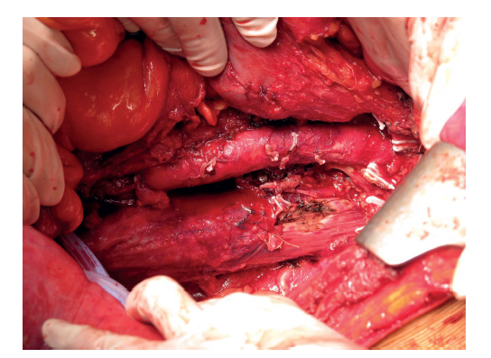 Fig. 2: Perioperative view after resection: psoas muscle, abdominal aorta