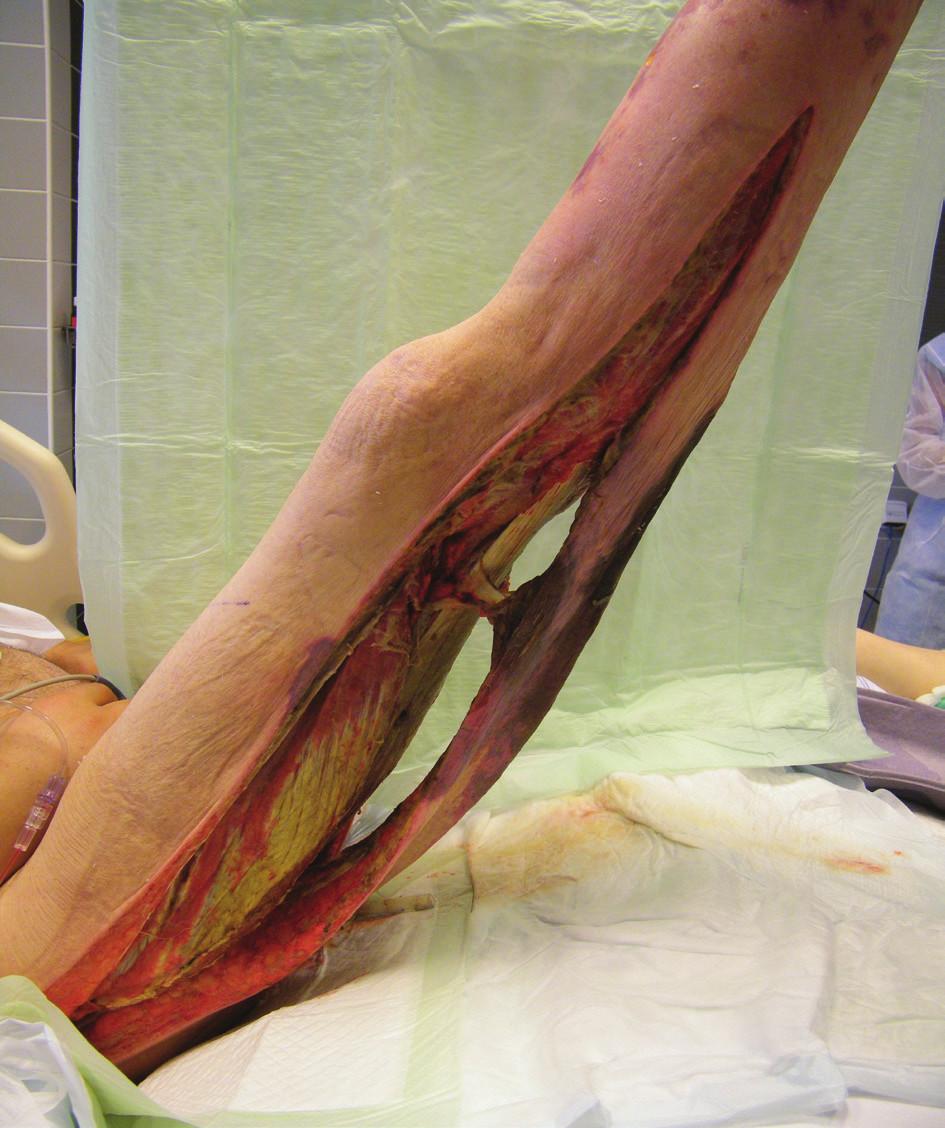 Pravá dolní končetina při převazu – rozsáhlé dermofasciotomie (19. 6. 2014)<br> Fig. 2: Right lower extremity during dressing change – extensive dermofasciotomies