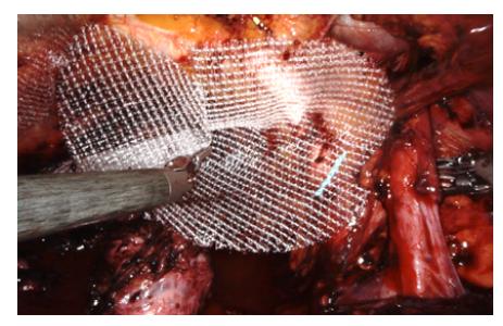 Síťka vpravo ještě před podvlečením pod semenným provazcem<br> Fig. 7. Mesh on the right side before placement behind the seminal cord