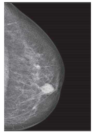 Karcinom prsu u seniorů − mammografie<br> Fig. 2: Breast carcinoma in elderly patients − mammography