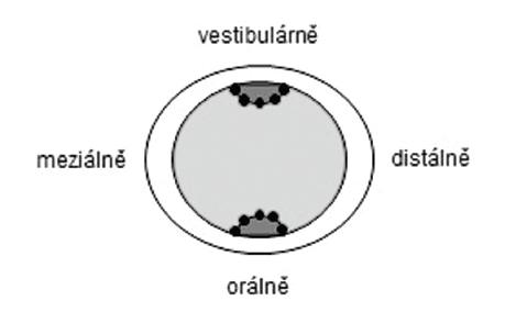 Horizontální řez otiskem. Měřené body (tečky) ve vestibulárních/linguálních slotech; obdobně<br>v aproximálních kavitách (pět bodů v každém pomocném prvku). Fig. 4 Horizontally cut replica slice. Measuring points (dots) in buccal/lingual grooves and proximal boxes respectively (five points each).
