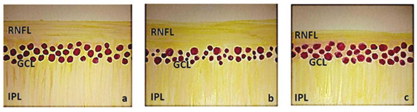 Schematic illustration of inner layers of retina (RNFL – retinal nerve fibre layer, GCL – ganglion cell layer, IPL – inner plexiform layer) a) normal finding, b) finding in HTG – reduction of GCL and slightly also RNFL, c) finding in NTG – reduction of RNFL and slightly also GCL