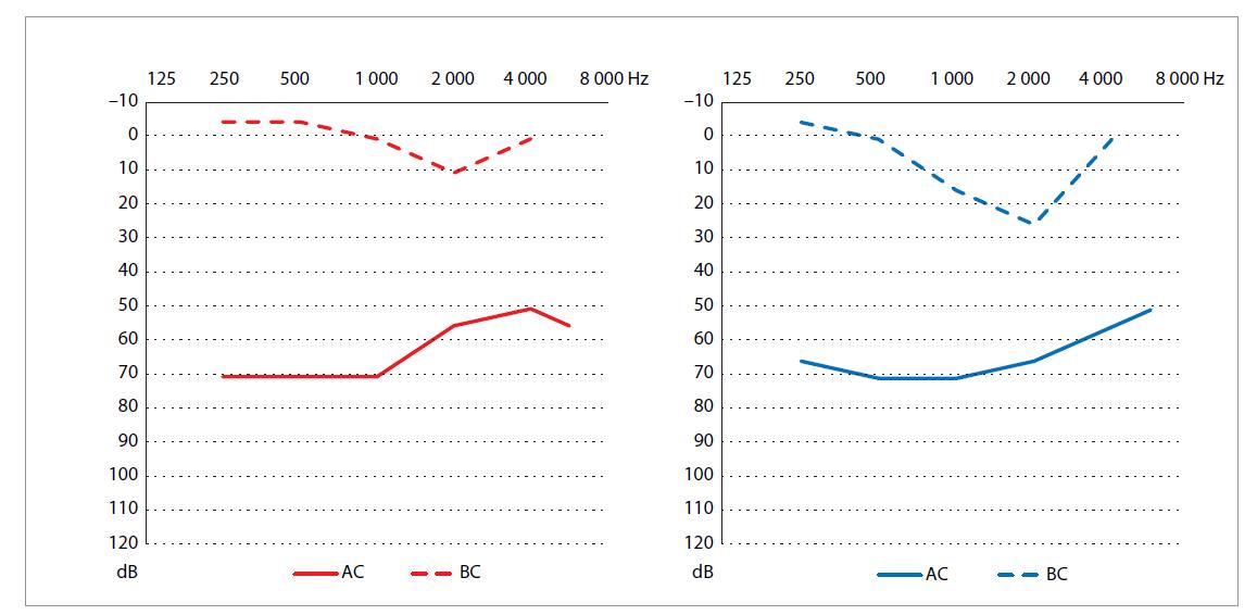 Predoperačný audiogram pacienta 2.<br> Graph 2. Preoperative audiogram of the patient 2.