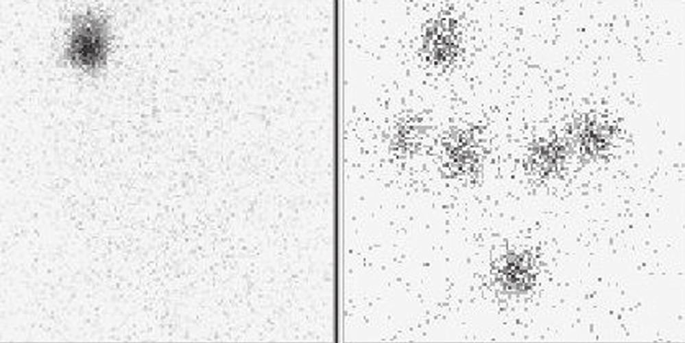Obr. 2a Scintigram krku 5 dní po podání po 1,1 GBq <sup>131</sup>I – reziduum v lůžku štítné žlázy vpravo. Vysvětlivky: vlevo nativní scintigram, vpravo značení – scintigram stejné oblasti se značkou v místě jugula kaudálně a nad ním s vyznačením jizvy po nTTE.