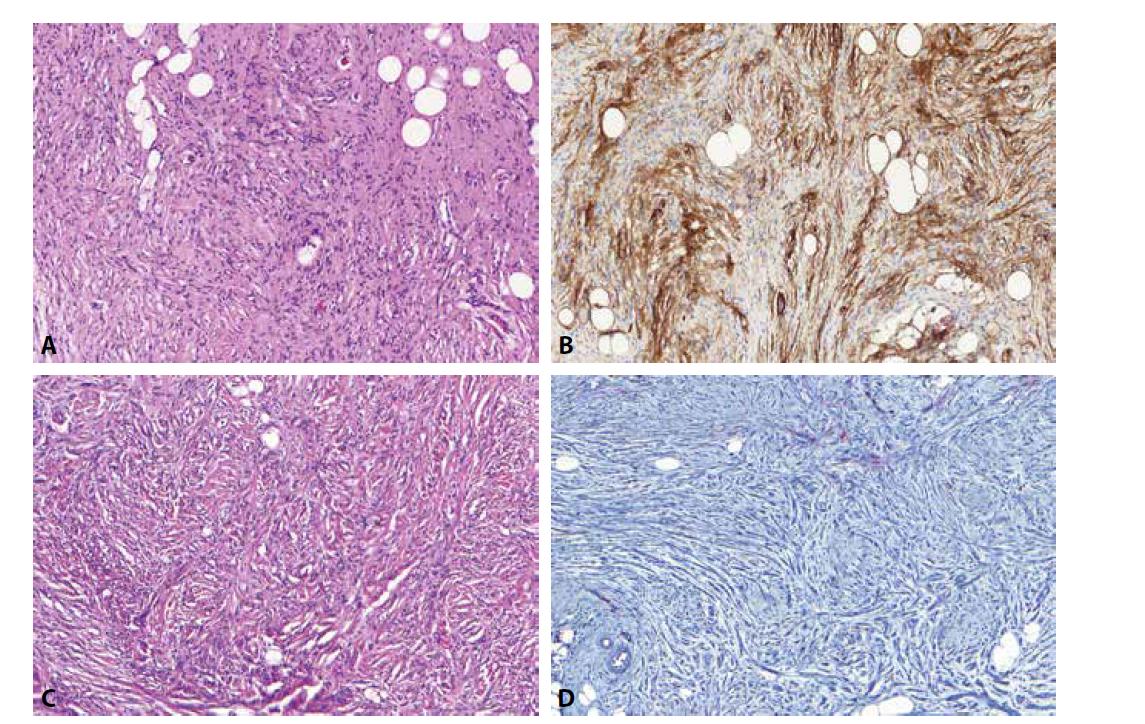 CD34 pozitivní buňky v neurofibromech (A) odpovídají fibroblastům a tvoří zde jakousi síťovitou strukturu, která je dobře patrná právě v tomto barvení (B). Při nádorové progresi do atypického neurofibromu (C) a low-grade maligního tumoru z pochev periferních nervů dochází ke změně architektoniky původního neurofibromu. To vede i ke ztrátě této CD34 pozitivní síťovité struktury (D), což je spolu s dalšími rysy považováno za jeden z diagnostických znaků této progrese.