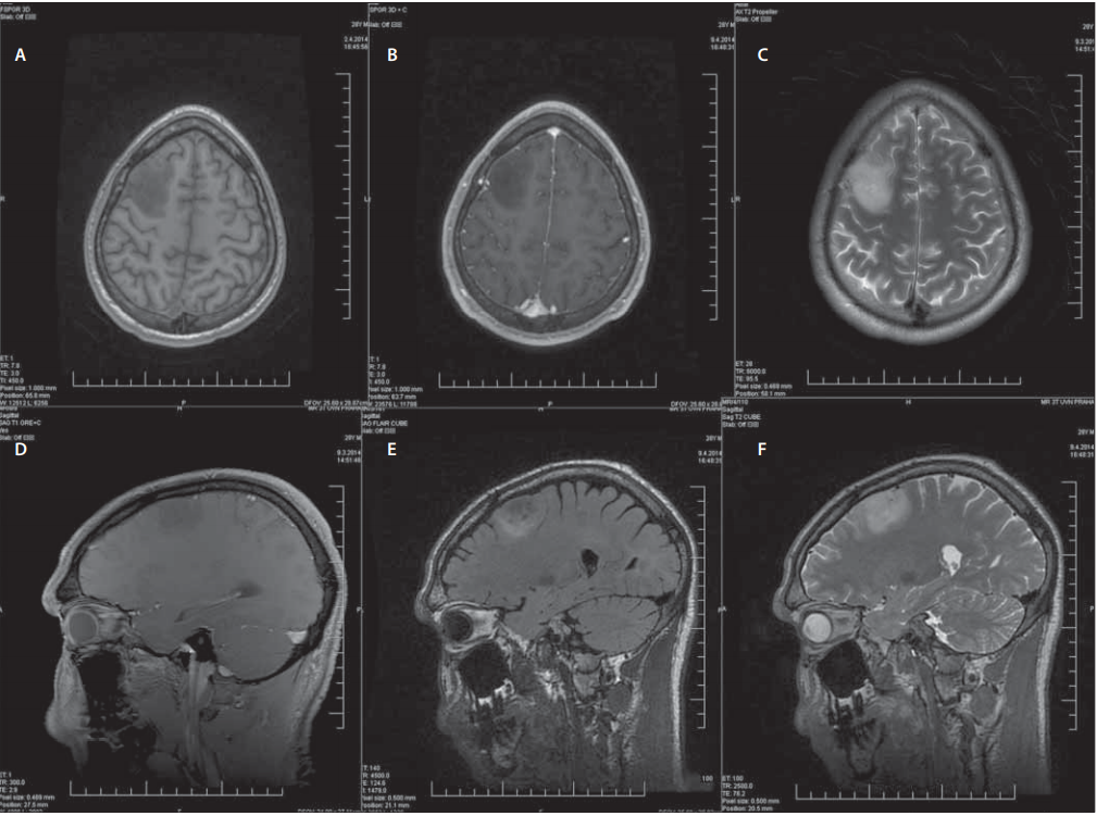Muž (28 let), status epilepticus, histologicky gliom WHO grade II. Předoperační konvenční sekvence MR. <br>