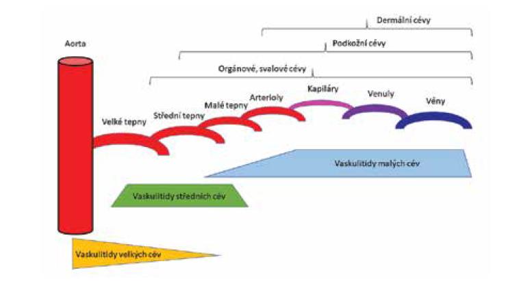 Schéma postižení cév, rozlišení podle postiženého kalibru cévy<br> Převzato podle Sunderkötter et al., 2018 [143].