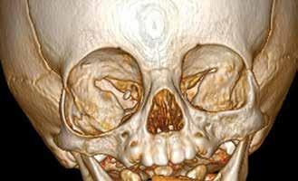 CT vyšetření v 9. měsíci věku s 3D rekonstrukcí obličejového skeletu s patrným rozšířením pravé orbity
