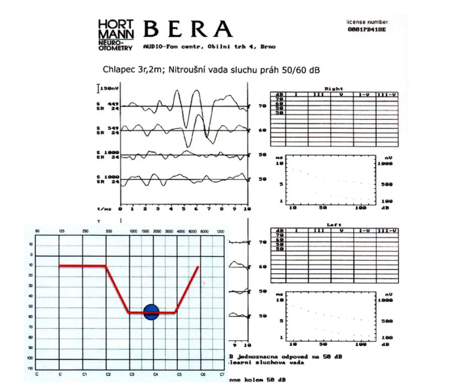 …anebo konečně jako pokles pouze v oblasti 2 kHz