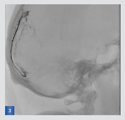 obr. 3 Angiografický nástřik přes mikrokatétr zavedený v sinus sagittalis superior v boční projekci. Je patrný obtékaný trombus (příznak kolejnice) a velmi zpomalený tok.