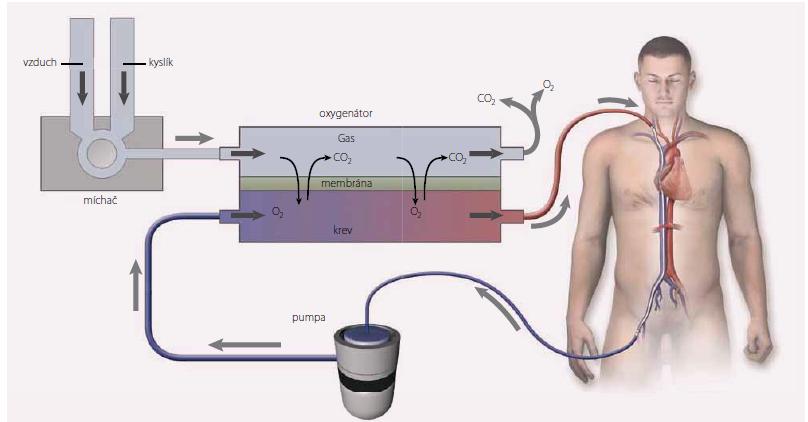 Schéma veno-arteriální mimotělní membránové oxygenace (V-A ECMO). Převzato z [4].