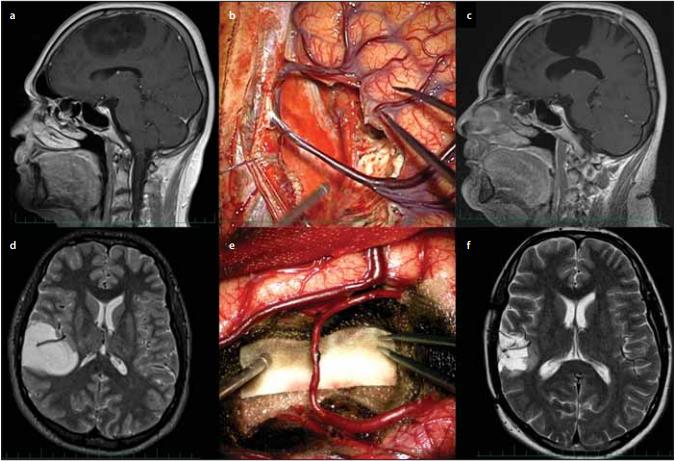 Zachování důležitých cévních struktur během operace nízkostupňového gliomu.<br> Fig. 3. Sparing of important vascular structures during low grade glioma surgery.