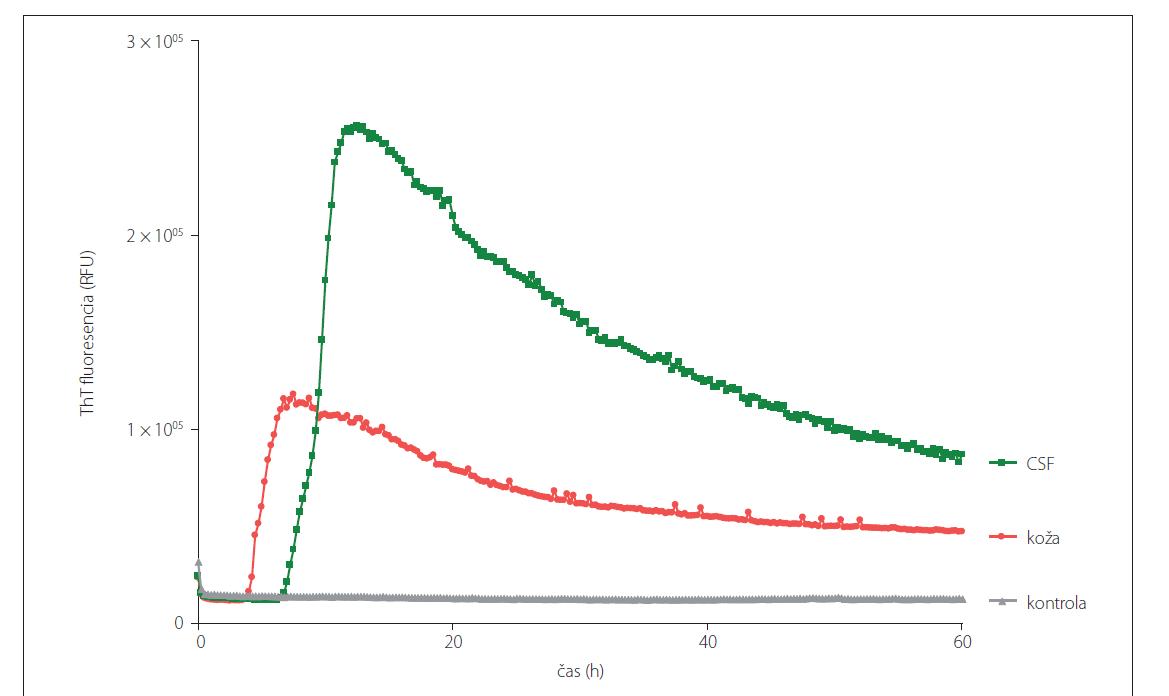 Prión konvertujúca aktivita vo vzorkách CSF a kože rovnakého sCJD (MM1) pacienta odobratých post-mortem analyzovaných pomocou RT-QuIC metódy. Vzorky CSF boli analyzované neriedené a vzorky kože boli nariedené 10x.<br> CSF – cerebrospinálna tekutina; RT-QuIC – Real-Time Quaking-Induced Conversion; sCJD – sporadická Creutzfeldt-Jakobova choroba; ThT – Thioflavín T<br> Fig. 3. Prion seeding activity in CSF and skin samples obtained post-mortem from the same patient with sCJD (MM1) diagnosis analyzed using RT-QuIC assay. CSF samples were analyzed undiluted and the skin samples were diluted 10x.<br> CSF – cerebrospinal fluid; RT-QuIC – Real-Time Quaking-Induced Conversion; sCJD – sporadic Creutzfeldt-Jakob disease; ThT – Thioflavin T