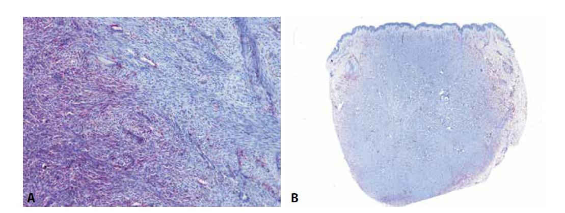 U dermatofibrosarcoma protuberans (DFSP) je možné pozorovat difúzní expresi CD34 v low-grade oblastech (A - vlevo) a její ztrátu v převážně fascikulárně rostoucích high-grade oblastech (A – vpravo). Ke ztrátě exprese v těchto partiích dochází ve zhruba polovině případů a může být nápomocná ke stanovení diagnózy fibrosarkomu ex DFSP. Protilátka CD34 je též užitečná k odlišení DFSP od benigního fibrózního histiocytomu. U fibrózních histiocytomů, zejména pak u jeho celulárních forem, je exprese CD34 někdy také přítomna, ale téměř vždy pouze na periferii tumoru, zatímco v jeho centru, na rozdíl od DFSP, chybí (B).