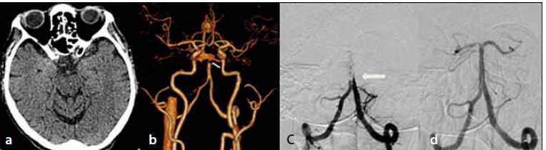 Natívne vyšetrenie CT mozgu – bez akútnych ložiskových zmien (a); CTA – oklúzia vrcholu a. basilaris (šípka) (b); DSA – oklúzia a. basilaris (šípka) (c); DSA – kompletná rekanalizácia oklúzie a. basilaris (d).<br> Fig. 1. Non-enhanced brain CT – without acute ischemic lesions (a); CTA – top-of-basilaris occlusion (arrow) (b); DSA – occlusion of basilar artery (arrow) (c); DSA – complete recanalization of basilar artery occlusion (d).