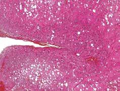 Dysorganizace vrstev mozečkové kůry, rozšířením stratum granulosum a stratum moleculare, hematoxylin-eosin, 100x.