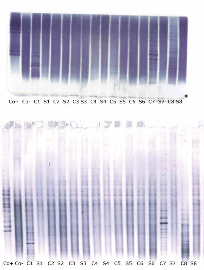 Oligoklonální IgG – IEF v agaróze s imunofi xací (nahoře) a PAG IEF s imunoblottingem (dole). Anoda je nahoře. Ve zobrazených vzorcích nebyly pozorovány žádné kvalitativní diskrepance (negativní versus pozitivní) mezi metodami. C1–8 – párové vzorky likvorů; Co+ – pozitivní kontrola (CSF Control, Sebia, Evry Cedex, Francie); Co– – negativní kontrola (intravenózní IgG preparát Flebogamma®, Instituto Grifols, Barcelona, Španělsko); IEF – izoelektrická fokusace; IgG – imunoglobulin G; PAG – polyakrylamidový gel; S1–8 – párové vzorky sér Fig. 1. Oligoclonal IgG on agarose IEF/immunofi xation (top) and PAG IEF/immunoblotting (bottom). Anode is at the top. No qualitative discrepances (negative versus positive) between the two methods were noted in these samples. C1–8 – paired cerebrospinal fluid samples; Co+ – positive control (CSF Control, Sebia, Evry Cedex, France); Co– – negative control (intravenous IgG remedy Flebogamma®, Instituto Grifols, Barcelona, Spain); IEF – isoelectric focusing; IgG – immunoglobulin G; PAG – polyacrylamide gel; S1–8 – paired serum samples