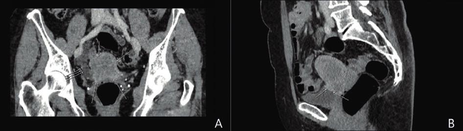 CT pánve v koronární a sagitální rovině.<br> A: V koronární rovině patrná nehomogenní měkkotkáňová expanze v oblasti dělohy (→), dilatace distálního úseku pravostranného ureteru ( ) s obstrukcí v úrovni křížení ureteru a tumoru dělohy.<br> B: V sagitální rovině děloha celkově nezvětšená, naznačené nehomogenní ložisko ve ventrální části krčku dělohy s infiltrací kraniální stěny močového měchýře (→).