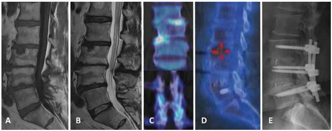 Pacient č. 4 po předchozí dekompresi L4/5 s těžkými degenerativními změnami celé bederní páteře, dominantně v L2-5, s mírnou degenerativní skoliózou a s Modicovými změnami dominantně typu 2, ale v okrajích smíšeného typu 1/2 na T1 vážených (A) a T2 vážených (B) MR obrazech. PET/CT vyšetření ukazuje zvýšenou aktivitu v prostoru L3/4 vlevo a L4/5 vpravo (C nahoře) a ve facetových kloubech L4/5 vlevo a L3–5 vpravo (C dole); kontrolní SPECT/CT vyšetření 2 roky po stabilizaci metodou TLIF L3–5 s negativním nálezem (D), RTG ukazuje dobré postavení instrumentária (E).<br> Fig. 1. Patient No. 4 after previous L4/5 decompression with severe degenerative changes in the entire lumbar spine, predominantly in L2–5, with mild degenerative scoliosis and with Modic changes – mainly Type 2, but mixed Type 1/2 at the edges on T1-weighted (A) and T2-weighted (B) images. PET/CT examination shows increased activity in L3/4 left and L4/5 right (C top) and L4/5 left and L3–5 right (C bottom); control SPECT/CT examination 2 years after TLIF stabilization, L3-5 with negative finding (D); X-ray shows good position of instrumentation (E).