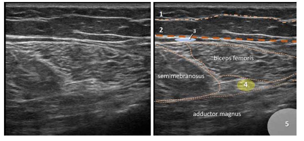 Nativní a kolorovaný ultrazvukový obraz zadní proximální části stehna. 1. povrchní fascie, 2. fascia lata, 3. místo pro aplikaci lokálního anestetika pro blokádu NCFP, 4. n. ischiadicus, 5. femur