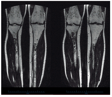 Střádání v kostní dřeni dlouhých kostí na MR u pacienta s Gaucherou chorobou I. typu