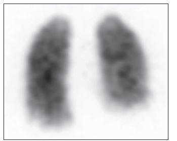 3D zobrazení plicní perfuze, pohled zadní. Je patrná homogenní distribuce perfuze obou plic, neobvyklá akumulace v dolním mediastinu, patrná při minulém vyšetření, však již přítomná není