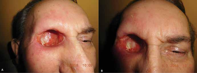 (A,B) Priebeh hojenia dutiny očnice – 2 mesiace od exenterácie (03/2018)