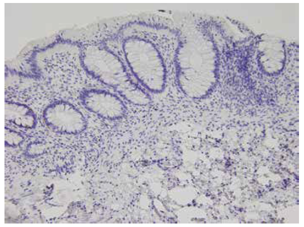 Negativní imunohistochemický průkaz kalretininu v lamina propria i muscularis mucosae, HN (200x).