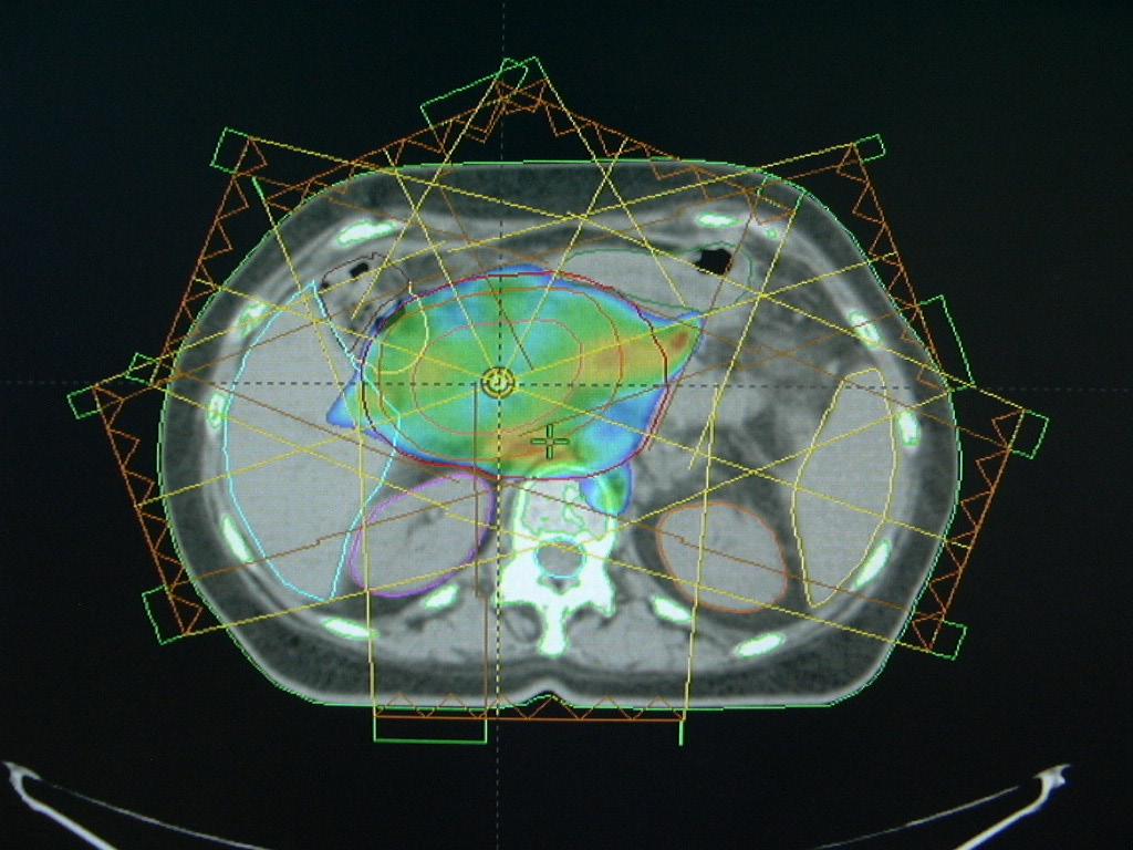 Technika IMRT u nádoru extrahepatálních žlučových cest