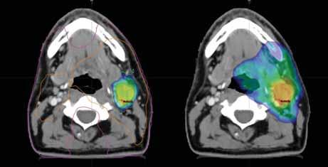 Dávkové rozložení v místě uzlinové metastázy; vlevo dávka 77,0 Gy dle 18F- -FMISO s izodózami 77 % (oranžová) a 50 % (fialová); vpravo dávka 70,0 Gy pokrývající oblast metastázy dle 18F-FDG; CT a MR s bezpečnostním lemem plánovacího objemu.