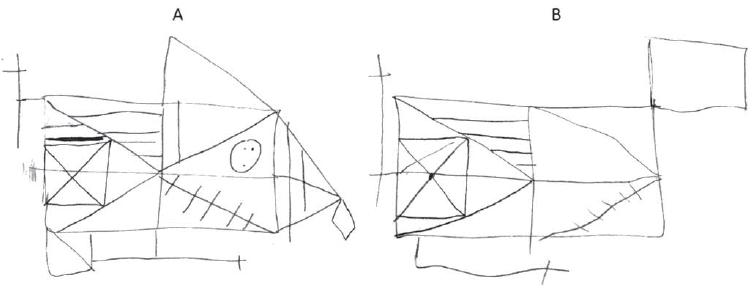 Rey-Osterriethov test komplexnej figúry. A) Kresba kópie. Nepresne ukončované línie, zdvojené detaily, zvýrazňované čiary. B) Oddialené vybavenie po 30 min. Chýba základný tvar figúry, prítomný malý počet detailov.<br> Fig. 2. Rey-Osterrieth complex figure test. A) Drawing of a copy. Inaccurate endings of the lines, duplicated details, and highlighted lines. B) Delayed recall after 30 min. The basic shape of a figure is missing, and few details are present.