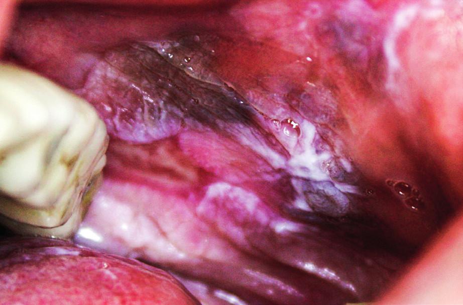 Pigmentace u orálního lichen planus