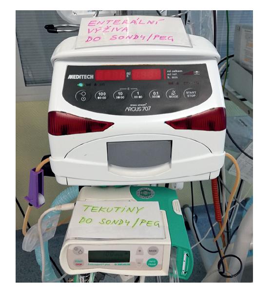 Praktické označení obou pump k enterální aplikaci<br> Fig. 3: Practical description of both enteral feeding pumps